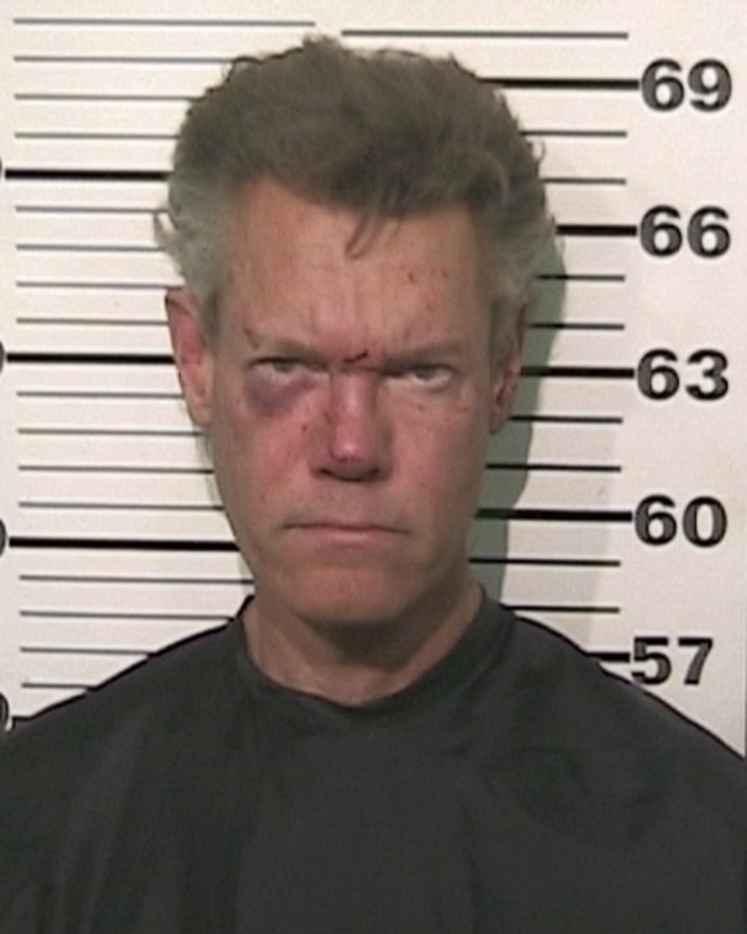 Randy Travis found naked and drunk