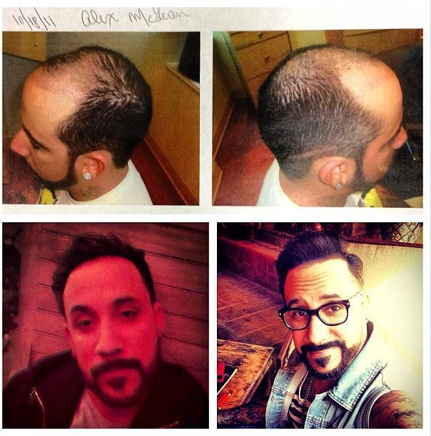 aj mclean hair implants transplants backstreet boys