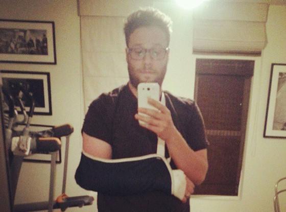 Seth Rogen elbow