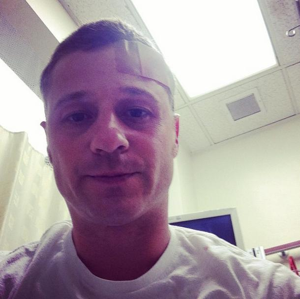 ben mckenzie injury
