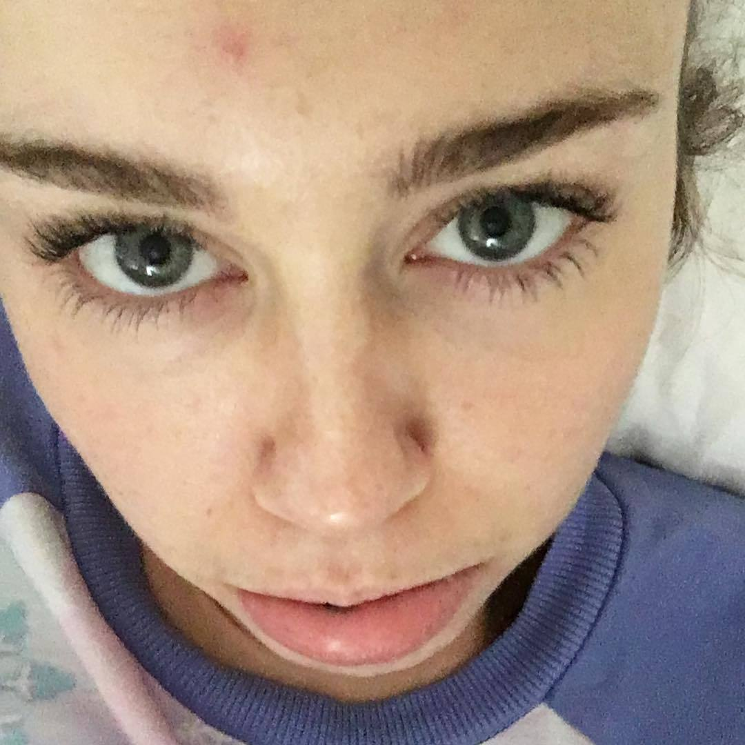 6. She's not afraid to show off her zits