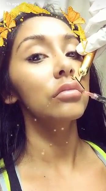 snooki lip injections