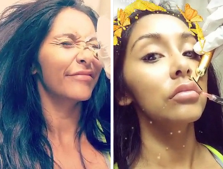 Snooki documents her first Botox injections on Snapchat